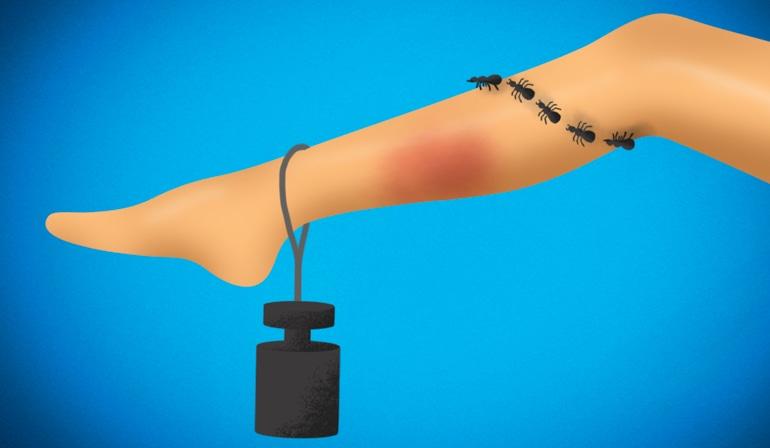Těžké nohy s křečovými žilami a zarudnutím