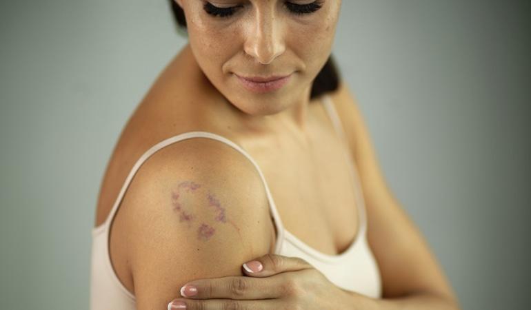 Podkožní hematom se zarudnutím