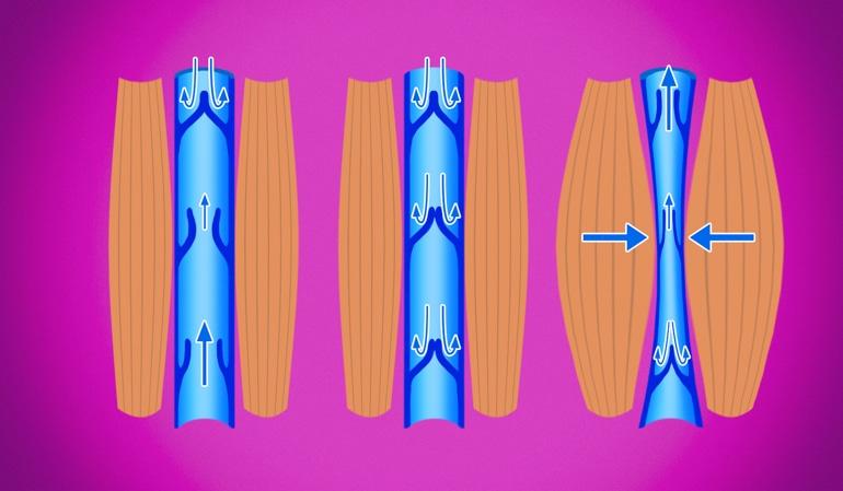 Ilustrace zdravé žíly, na níž je vidět normální komprese žíly, která podporuje oběh zpět k srdci