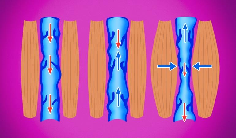 Ilustrace žilní nedostatečnosti, na níž je vidět abnormální komprese žíly a další ztráta elasticity, která brání oběhu krve